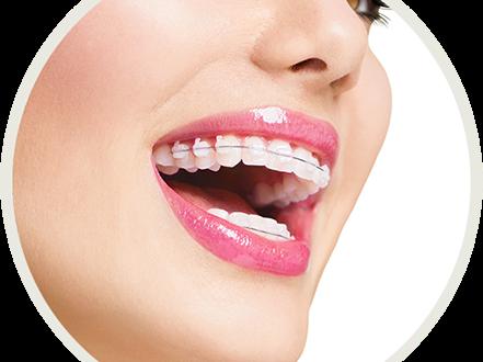 Nuevo convenio en ortodoncia